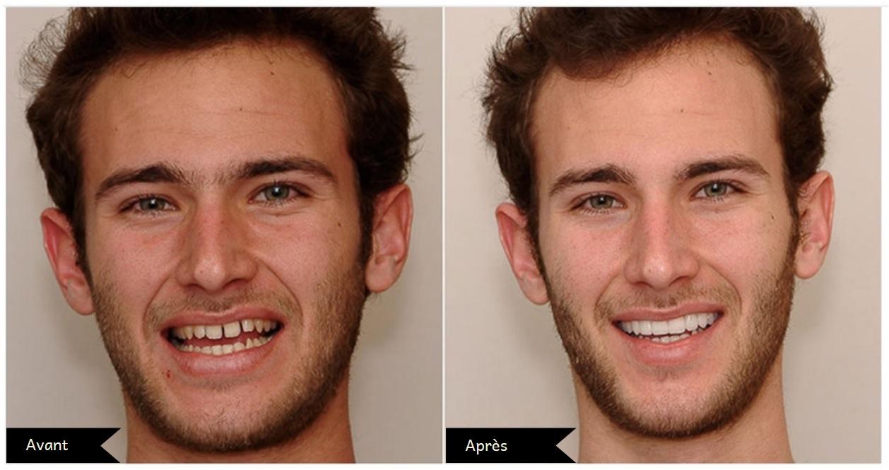 résultat facette dentaire Turquie