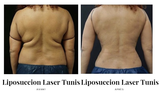 Liposuccion Laser Tunisie photos d'avant et après