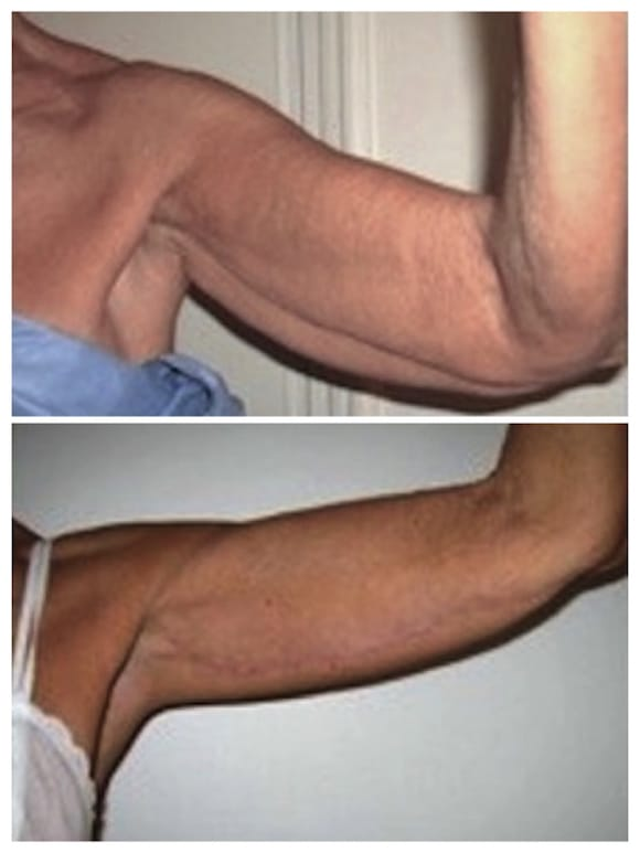 Lifting brachial Tunisie