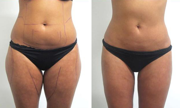 Photos d'avant et après liposuccion ventre, pubis et cuisses