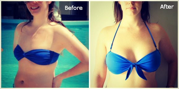 Avant après augmentation seins