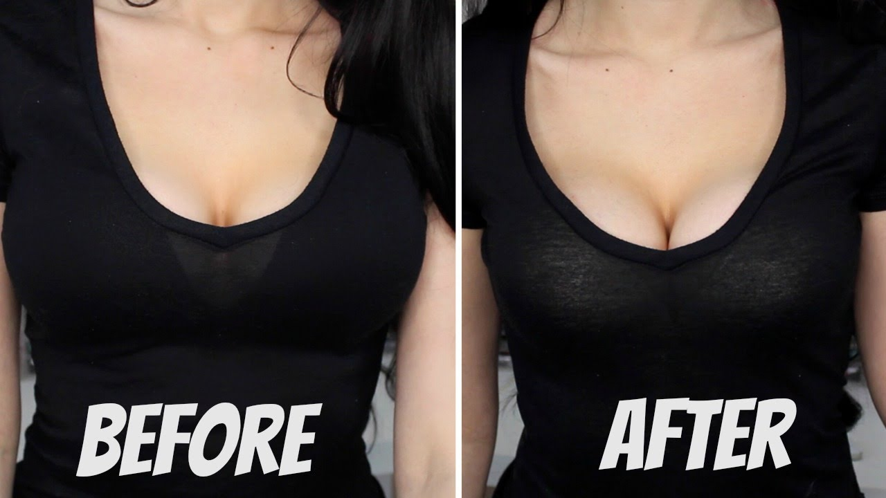 Photos avant après augmentation seins