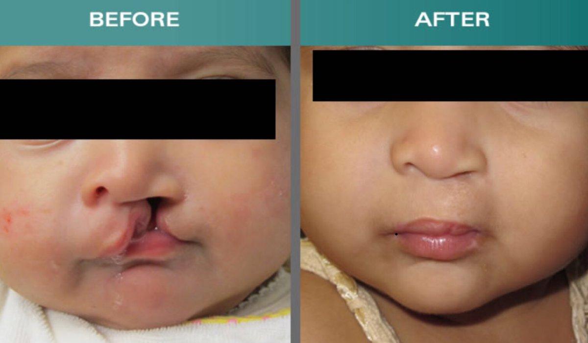 photos avant après traitement fente labiale