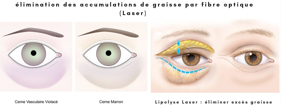 Blepharoplastie Laser Tunisie