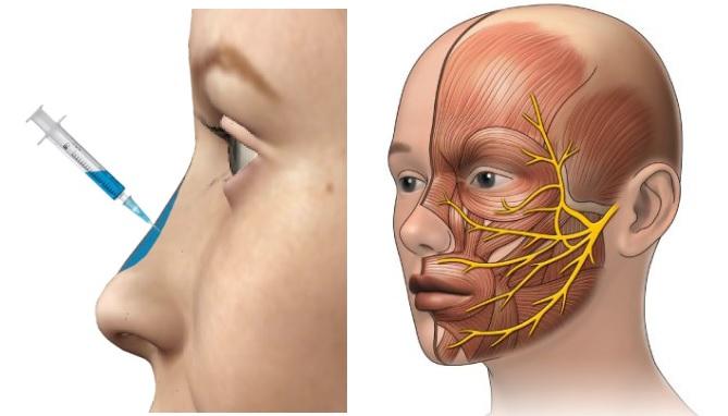 rhinoplastie medicale Turquie
