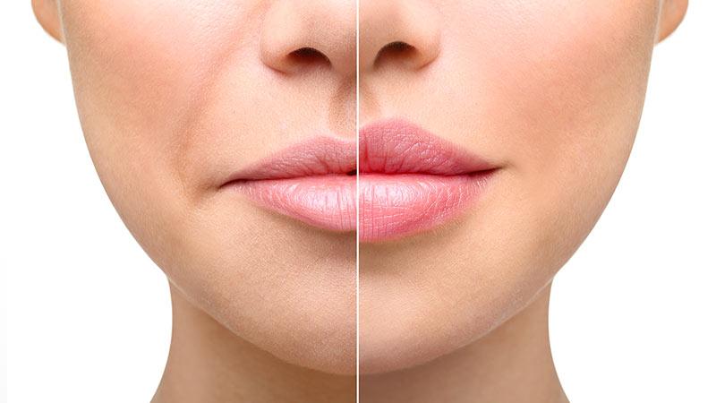 Augmentation des lèvres en Tunisie: comment se déroule-t-elle?