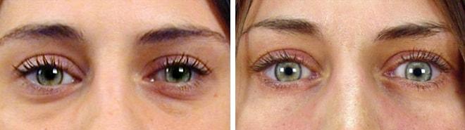 blepharoplastie Laser Turquie avant après