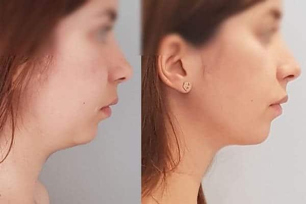 Genioplastie Turquie Photos avant et après