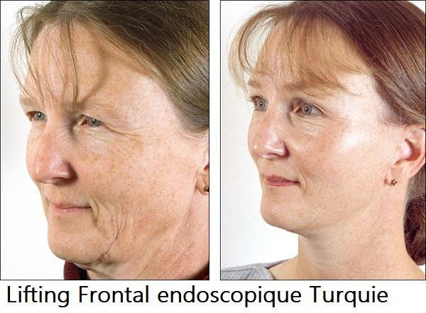 Lifting endoscopique Turquie